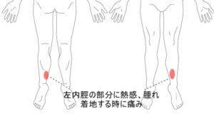 症例11画像