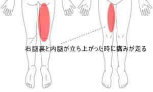 症例4画像