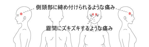 症例5画像