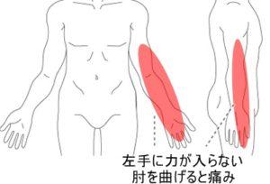 症例14画像